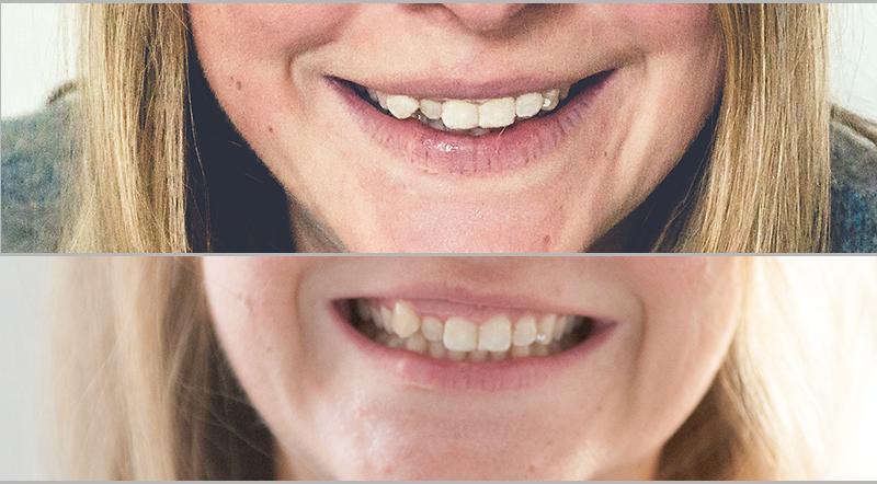 Meine Erfahrungen mit Smile Me Up - Oberkiefer Ergebnisse